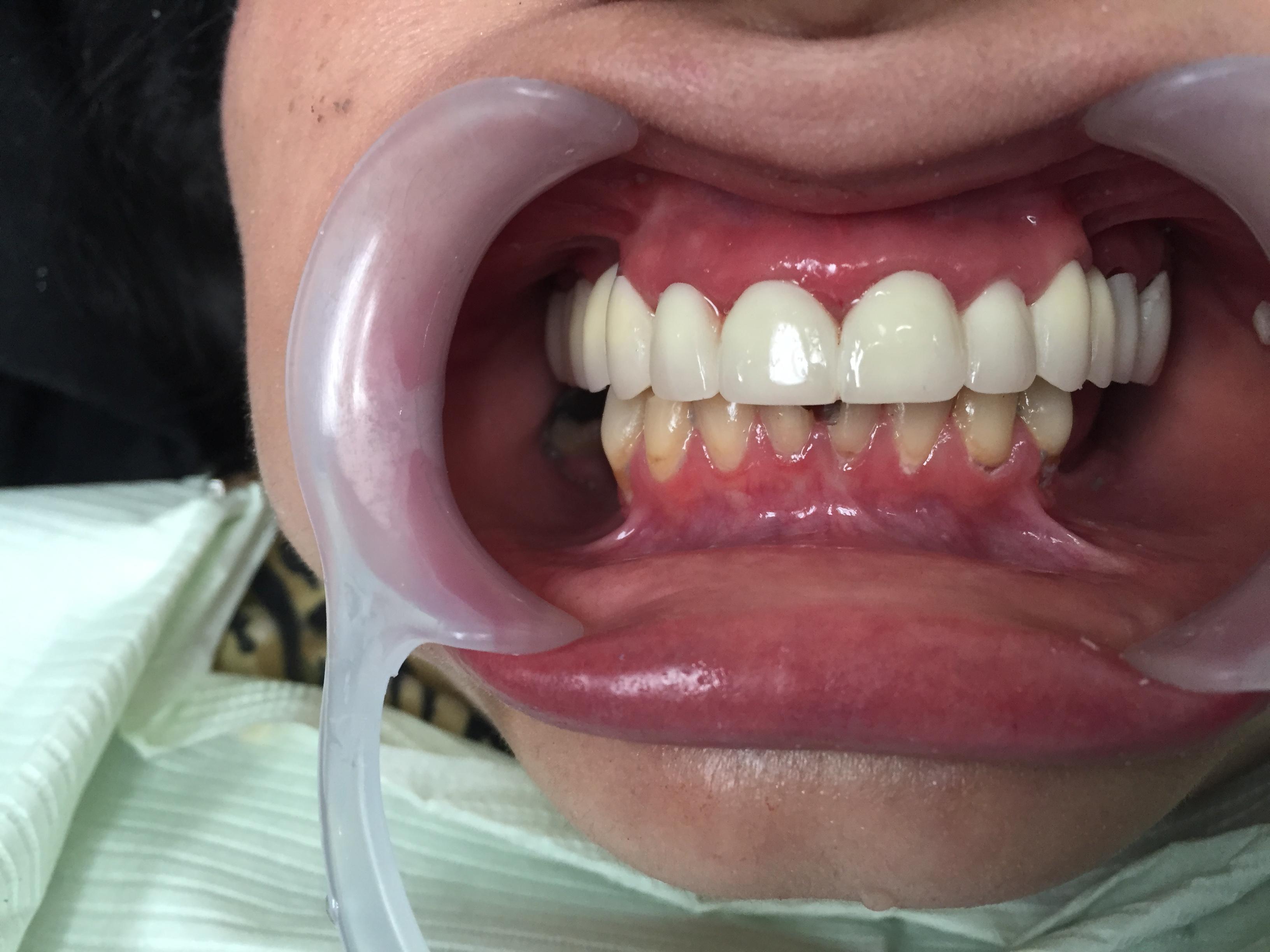 Caso-Dental-Agosto-4