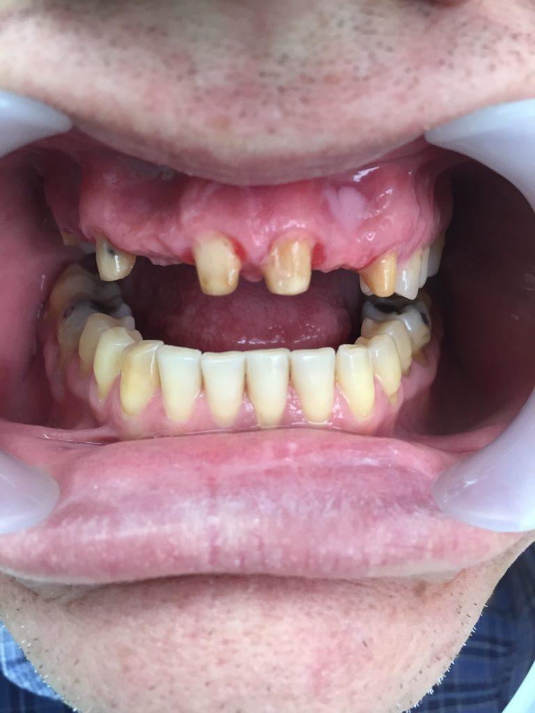 Caso Dental Diciembre 2015-1