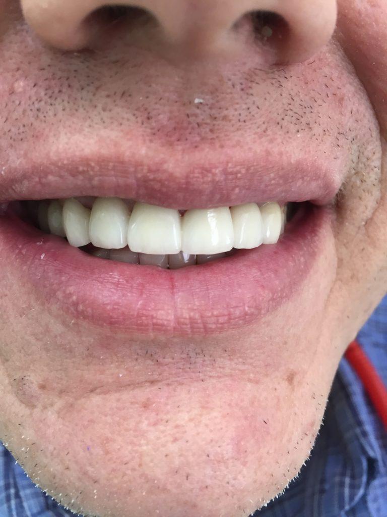Caso Dental Diciembre 2015-2