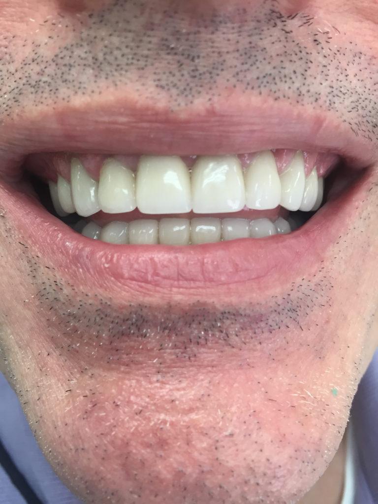 Caso-Dental-Diciembre-5-Atras