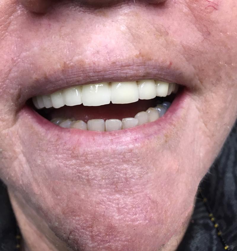 Sonrisa-Febrero-2016-2